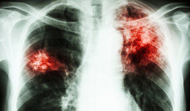 Zeci de copii din Alexandria, în pericol să se îmbolnăvească de TBC